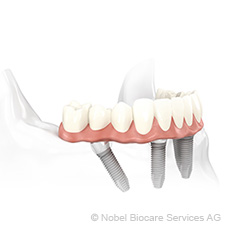 even-bone-replacement-may-be-avoided-with-all-on-4-dental-implantation-small