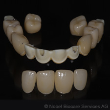 hybrid-bridge-screw-retained-zirconia-framework-with-12-lithium-disilicate-crowns-small