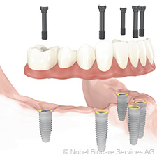 screw-retained-denture-to-be-placed-on-6-implants-small