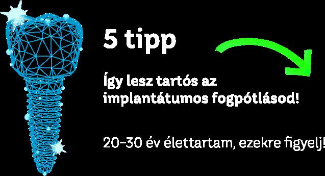 5 tipp - így lesz tartós az implantátumos fogpótlásod!
